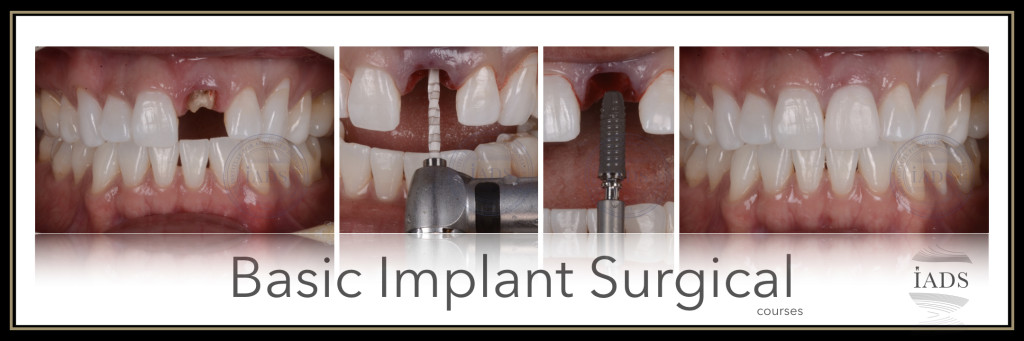 Basic 101 implant course