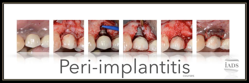 Peri-implantitis – 2-Day Surgical Course