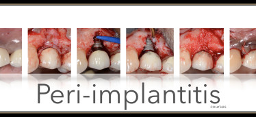 Peri-implantitis – 2-Day Surgical Course
