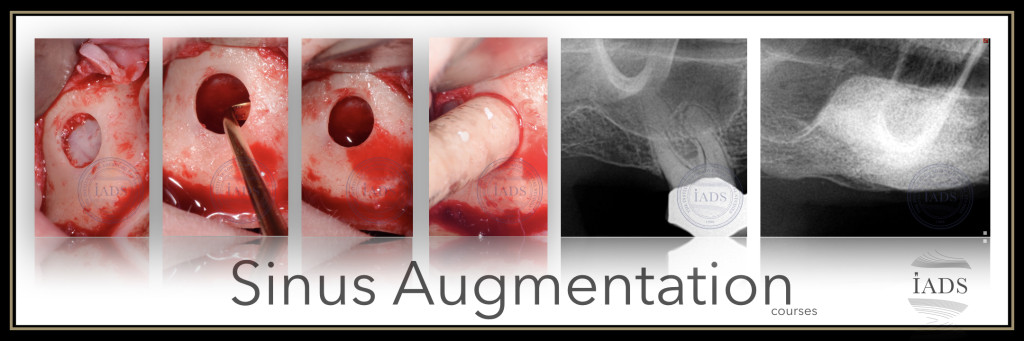 2-Day Surgical sinus lift course